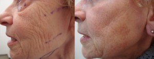 laser-resurfacing-before-after-photo-4-326