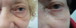 laser-resurfacing-before-after-photo-5-326-5