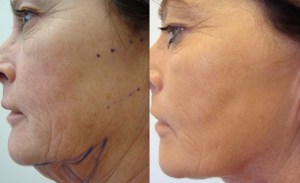 laser-resurfacing-before-after-photo-6-197