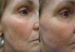 laser-resurfacing-before-after-photo-7-290