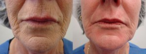 laser-resurfacing-before-after-photo-8-204-2