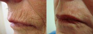 laser-resurfacing-before-after-photo-8-204-3