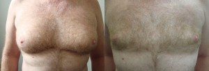 chest-lipo-before-after-photo-392-1