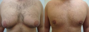 liposuction-chest-before-after-photo-382-10