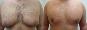 liposuction-chest-before-after-photo-382-3