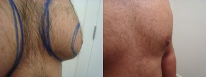liposuction-chest-before-after-photo-382-4