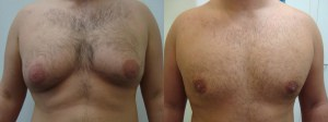 liposuction-chest-before-after-photo-382-6
