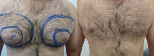male-chest-lipo-before-after-photo-395-1