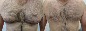 male-chest-lipo-before-after-photo-395-5