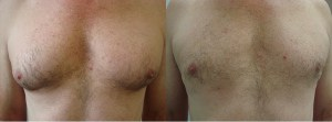 man-boobs-before-after-photo-12-253-1