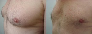 man-boobs-before-after-photo-14-253-2