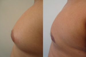 man-boobs-before-after-photo-23-168-2
