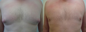 man-boobs-before-after-photo-4-277