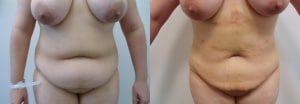 mega-lipo-before-after-photo-3-317