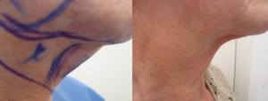 neck-lipo-before-after-458-5