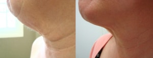 neck-lipo-before-after-photo-423-2