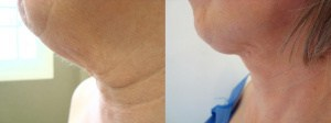 neck-lipo-before-after-photo-423-3