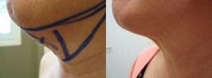 neck-lipo-before-after-photo-423-5