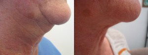 neck-lipo-before-after-photo-431-1