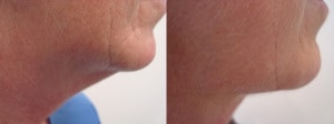 neck-liposculpture-before-after-photo-10-187-2
