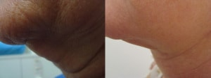 neck-liposculpture-before-after-photo-10-242