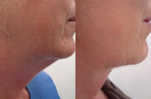 neck-liposculpture-before-after-photo-12-187-1