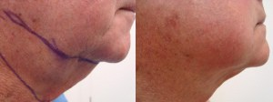 neck-liposculpture-before-after-photo-13-271