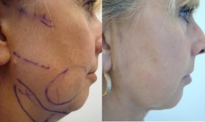 neck-liposculpture-before-after-photo-14-302