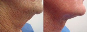 neck-liposculpture-before-after-photo-2-204