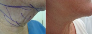 neck-liposculpture-before-after-photo-3-208