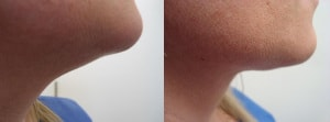 neck-liposculpture-before-after-photo-4-282
