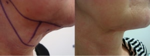 neck-liposculpture-before-after-photo-8-206-1