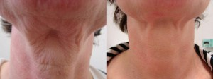 neck-liposculpture-before-after-photo-9-206-2