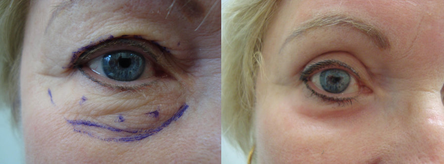 Eye Lid Surgery Before After Case Studies