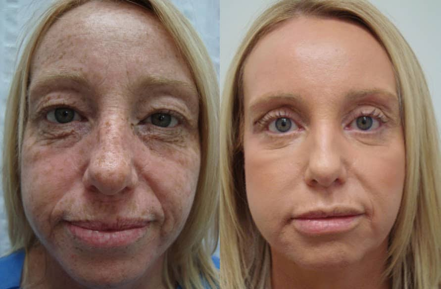 Cosmetic Sugery Before After Photo 9 331