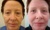 cosmetic-sugery-before-after-photo-12-307