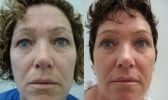 cosmetic-sugery-before-after-photo-2-284-7