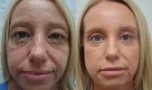cosmetic-sugery-before-after-photo-9-331