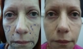 fat-transfer-before-after-photo-444-2