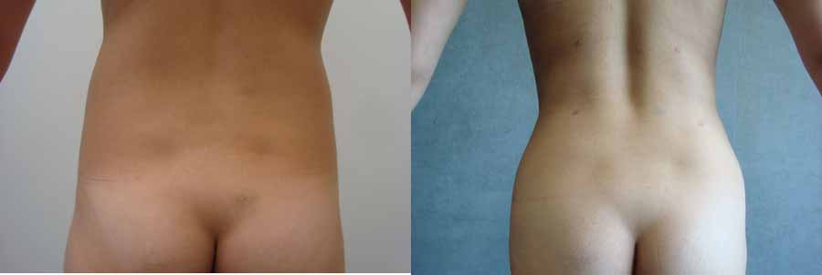 Laser Liposuction May Zap Fat Without Skin Sag