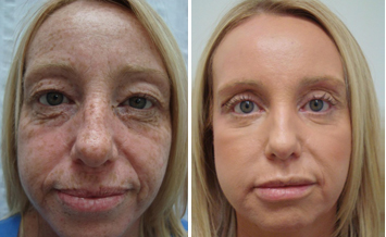 View Before And After Photos Of Patients Who Have Had