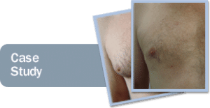 male breast reduction recovery