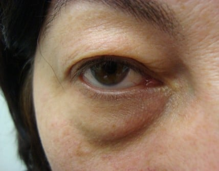 Eyelid Surgery - Laser On A Heavy Upper Eyelid