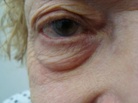Eyelid Surgery Before & After Photos - By Dr Lanzer