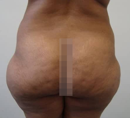 Female Liposuction Before & After Photos