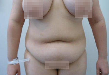Mega Liposuction Surgery Before and After