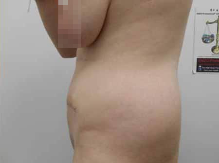 Tummy Tuck After Photos