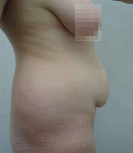 Tummy Tuck Before Photo (2)