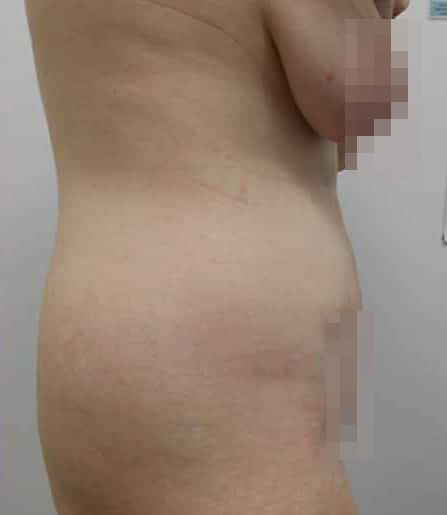 Tummy Tuck After Photo (2)