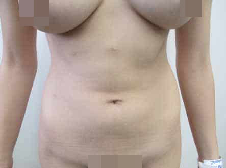 female vaser high def liposuction before and after